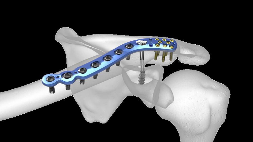 Radiuskopfprothese